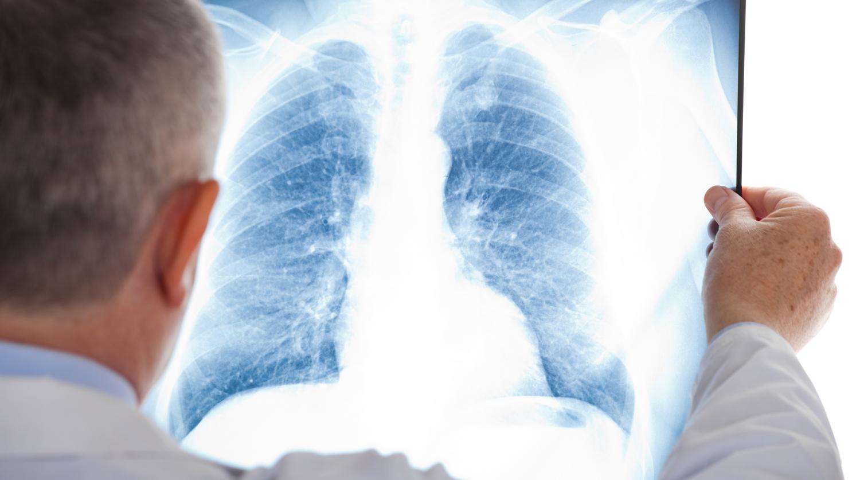 Названы признаки перехода ОРВИ в пневмонию