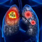 Врач-пульмонолог назвала два симптома COVID-19, требующие срочной госпитализации