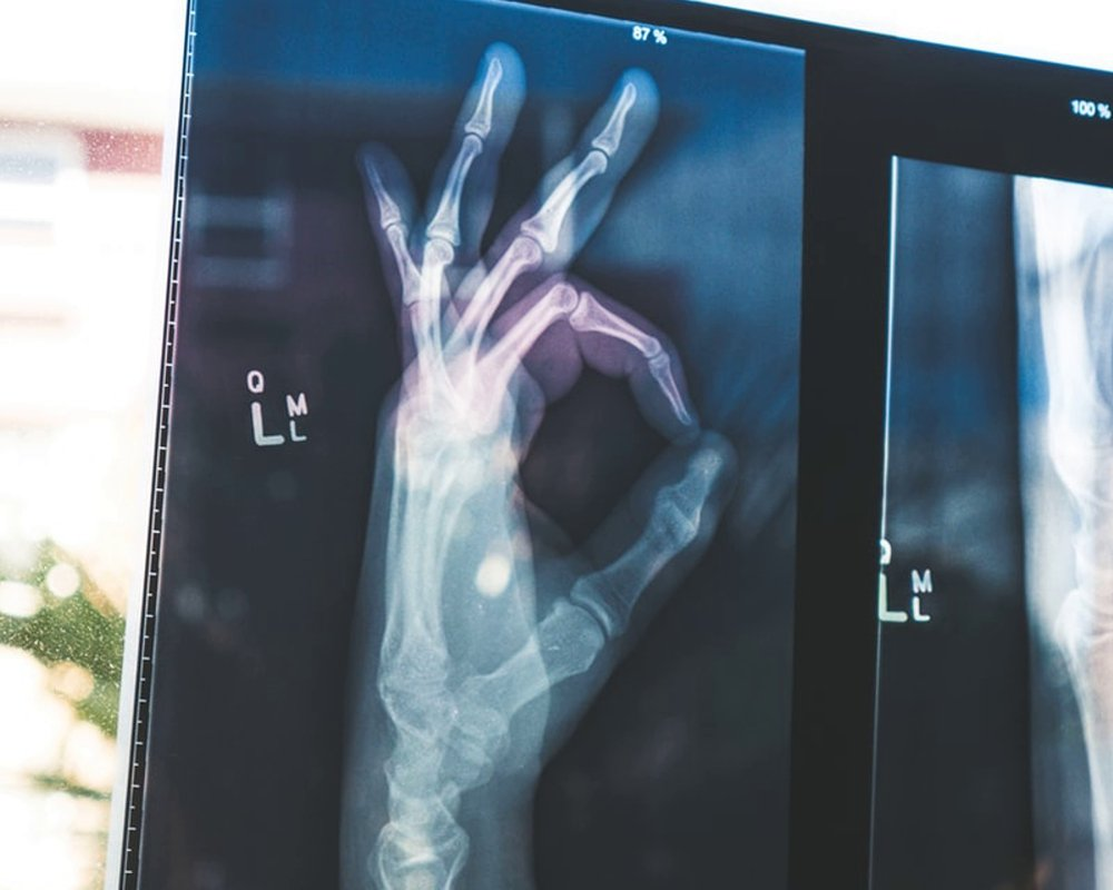 Потеря подвижности повышает риск инфекции