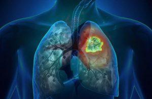 Фиброз легких после COVID-19: главные причины и способы восстановления