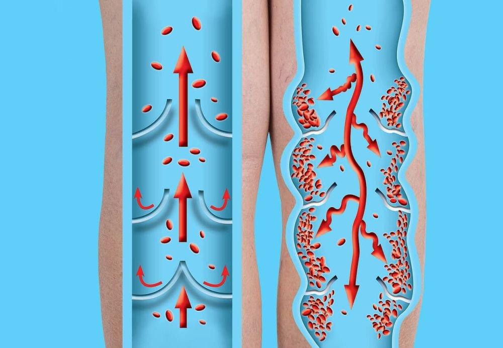 Тромбы могут быть основной причиной постковидного синдрома