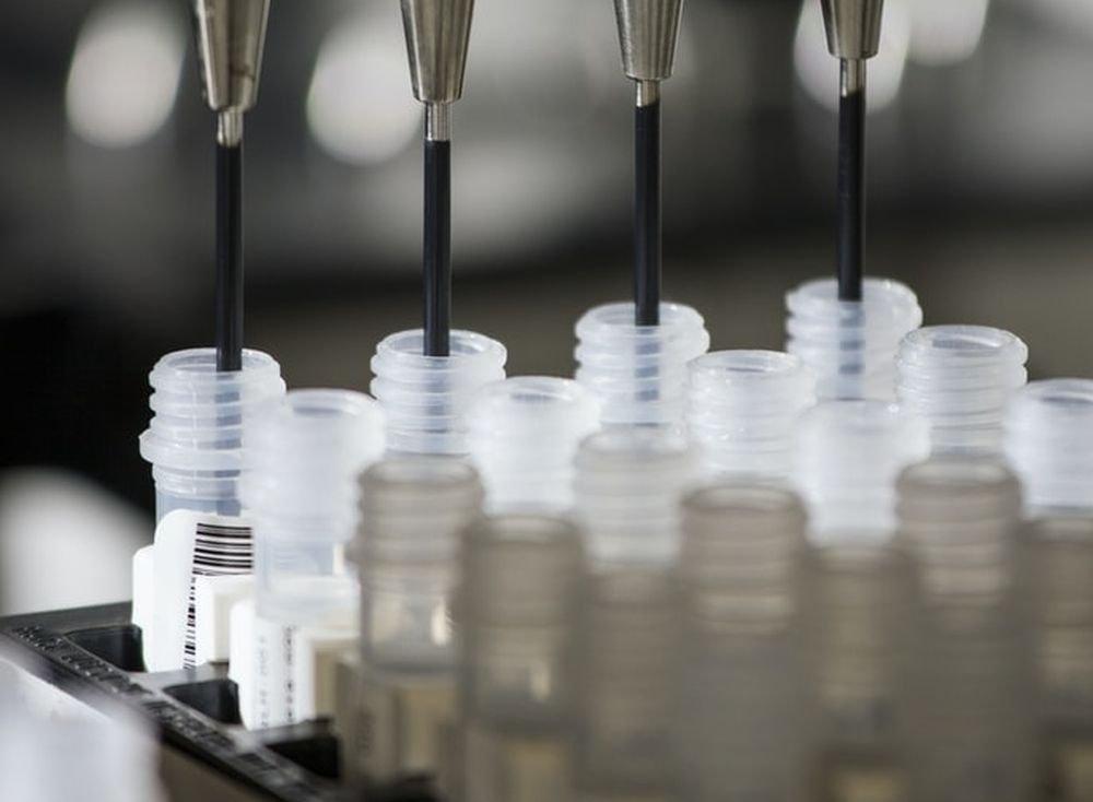 Некоторые гены дают защиту от коронавируса